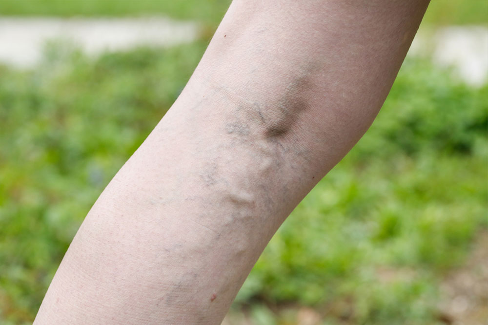 Common Symptoms and Treatments for Varicose Veins