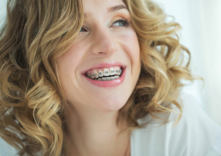 A guide to adult braces