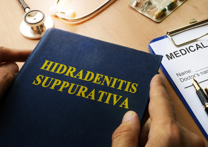 All You Need to Know about Hidradenitis Suppurativa