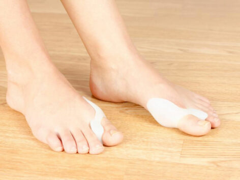 Things You Need to Know about Bunion Treatment
